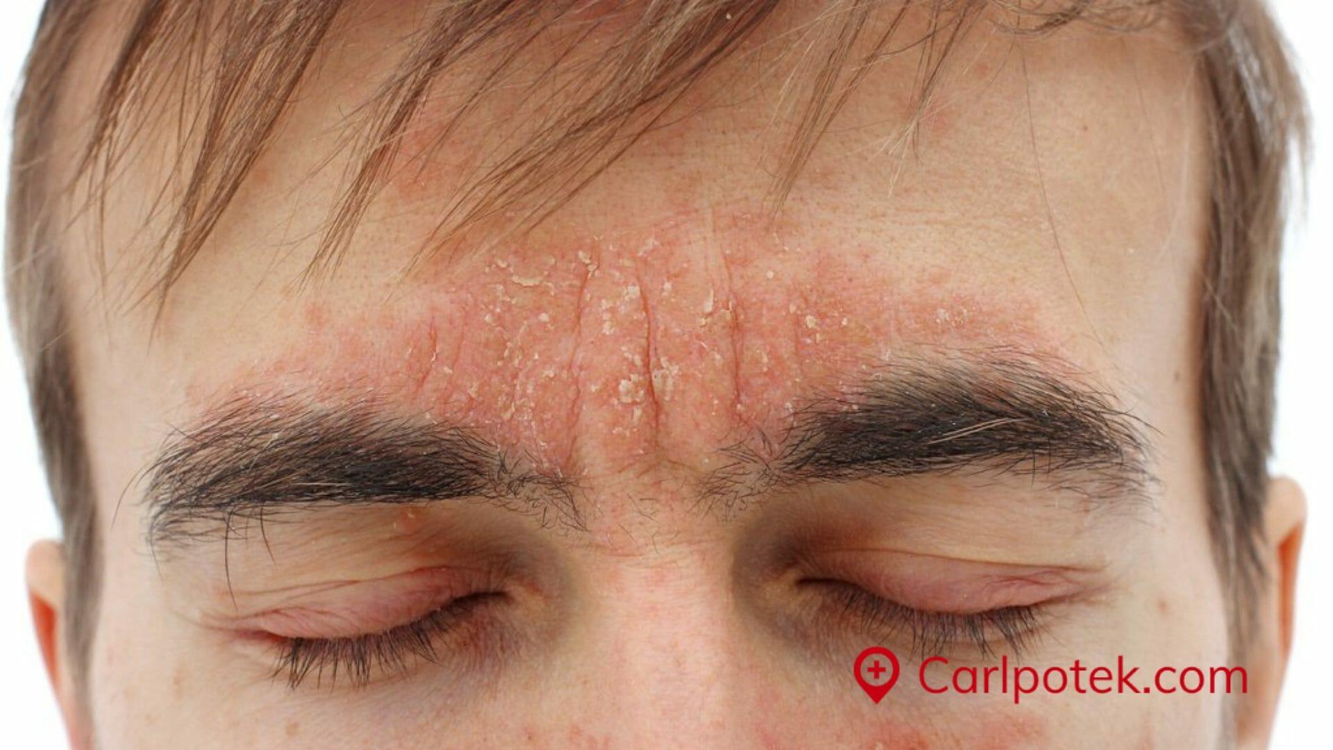 seborrheisk dermatitis